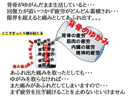 ぎっくり腰の説明.jpg